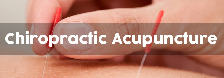 Chiropractic Acupuncture in Wells ME